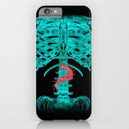 Nervous Human Xray iPhone Case