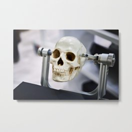 Human skull model in clamps for education Metal Print