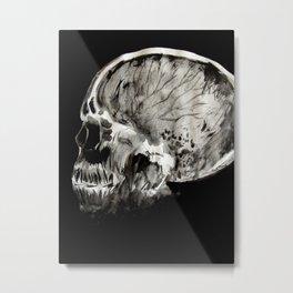 January 11, 2016 (Year of radiology) Metal Print